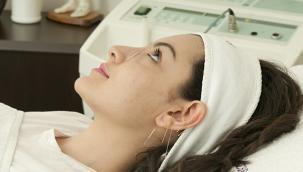 Akupunktur ile Migren Ağrılarına Son